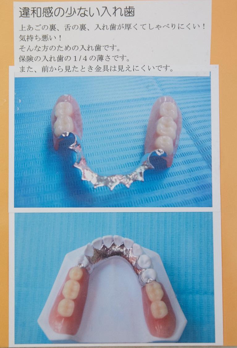 違和感の少ない入れ歯