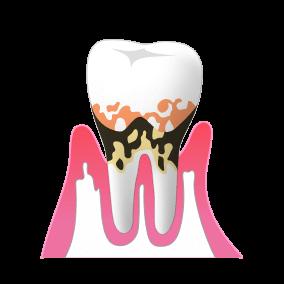 中度歯周病